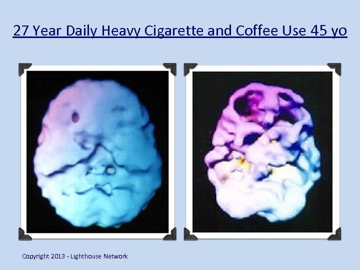 27 Year Daily Heavy Cigarette and Coffee Use 45 yo Copyright 2013 - Lighthouse