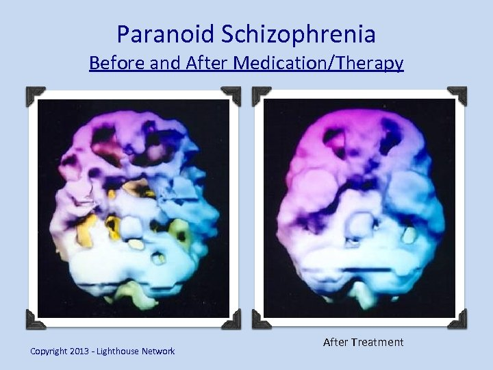 Paranoid Schizophrenia Before and After Medication/Therapy Copyright 2013 - Lighthouse Network After Treatment