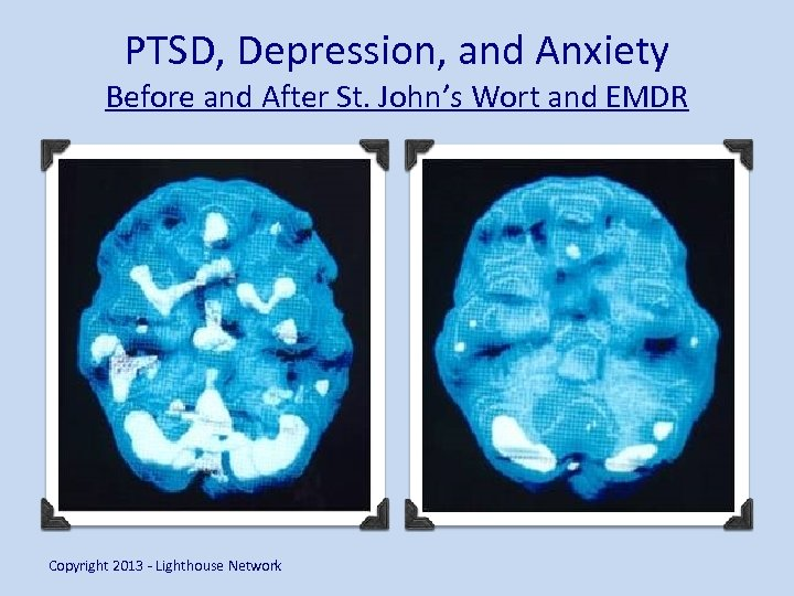 PTSD, Depression, and Anxiety Before and After St. John's Wort and EMDR Copyright 2013