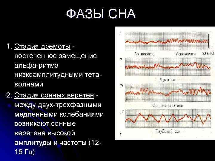 ФАЗЫ СНА 1. Стадия дремоты - постепенное замещение альфа-ритма низкоамплитудными тетаволнами 2. Стадия сонных
