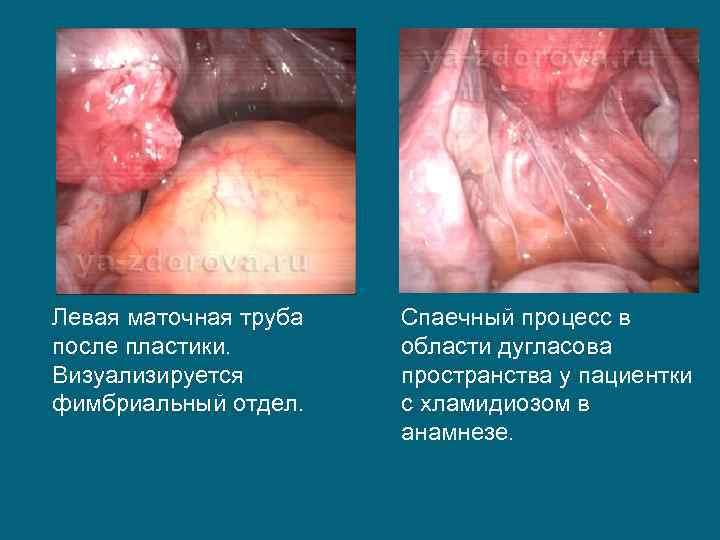 Левая маточная труба после пластики. Визуализируется фимбриальный отдел. Спаечный процесс в области дугласова пространства