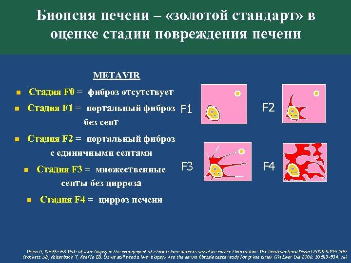 Биопсия печени – «золотой стандарт» в оценке стадии повреждения печени METAVIR Стадия F 0
