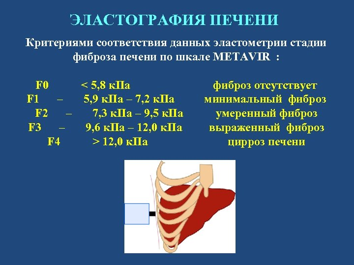 ЭЛАСТОГРАФИЯ ПЕЧЕНИ Критериями соответствия данных эластометрии стадии фиброза печени по шкале METAVIR : F