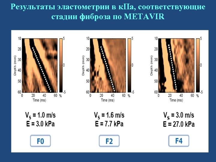 Результаты эластометрии в к. Па, соответствующие стадии фиброза по METAVIR