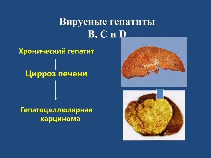 Вирусные гепатиты В, С и D Хронический гепатит Цирроз печени Гепатоцеллюлярная карцинома
