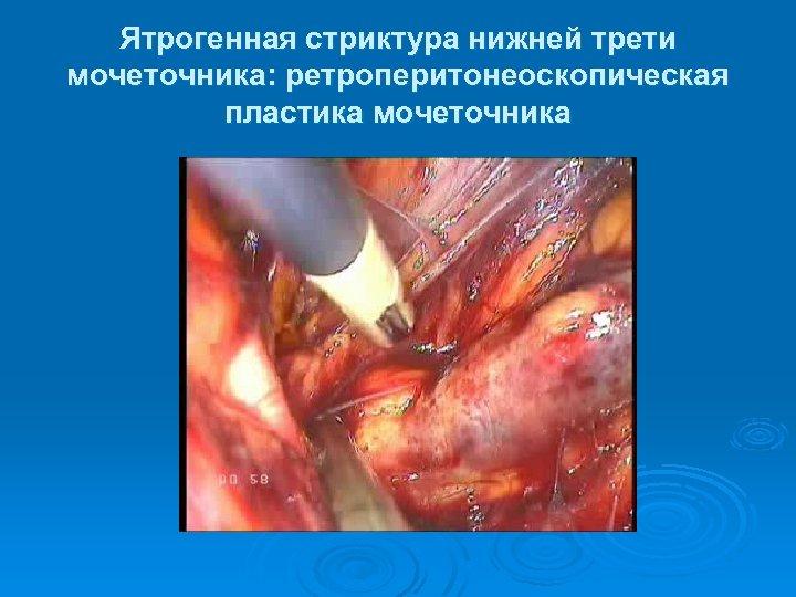 Ятрогенная стриктура нижней трети мочеточника: ретроперитонеоскопическая пластика мочеточника