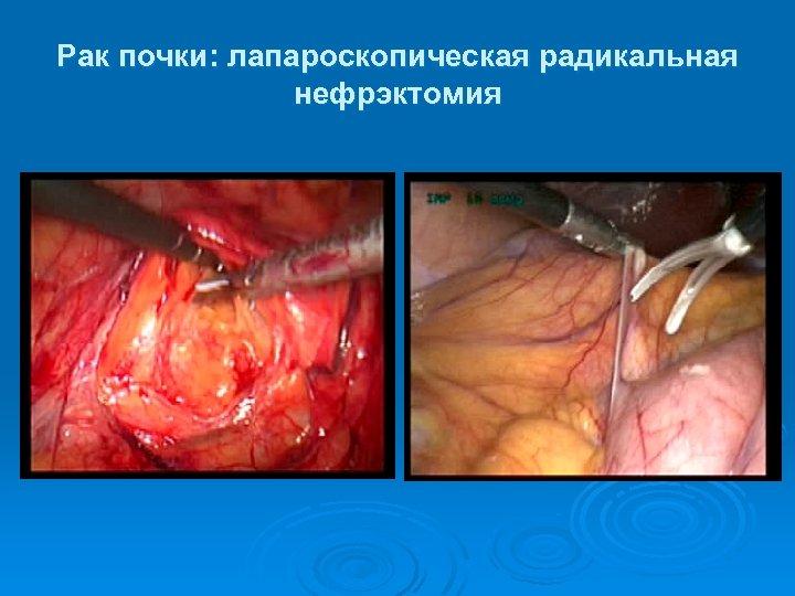 Рак почки: лапароскопическая радикальная нефрэктомия