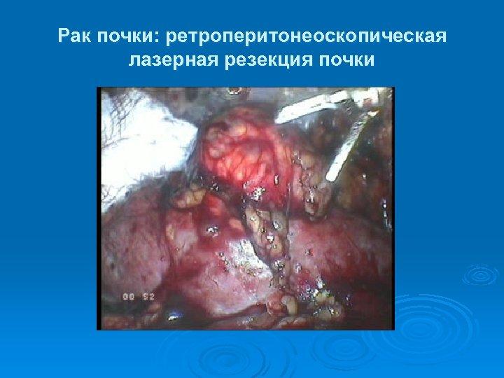 Рак почки: ретроперитонеоскопическая лазерная резекция почки