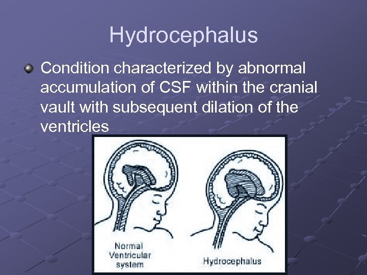 Hydrocephalus Condition characterized by abnormal accumulation of CSF within the cranial vault with subsequent