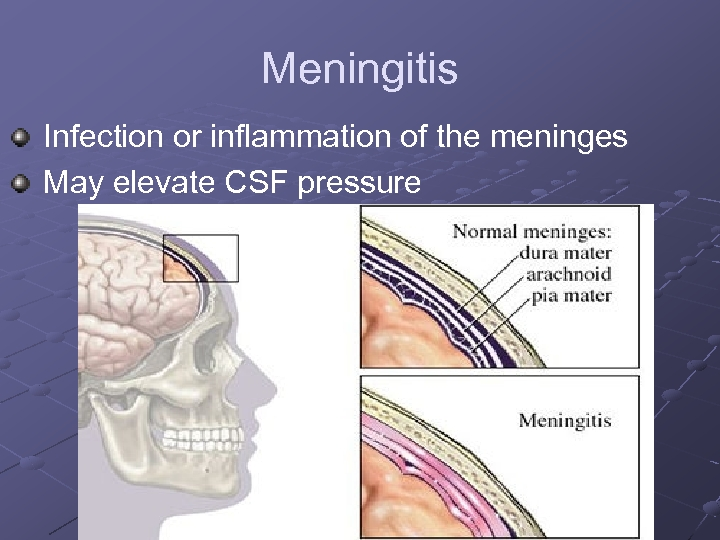 Meningitis Infection or inflammation of the meninges May elevate CSF pressure