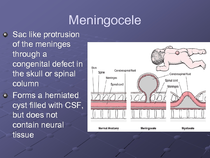 Meningocele Sac like protrusion of the meninges through a congenital defect in the skull