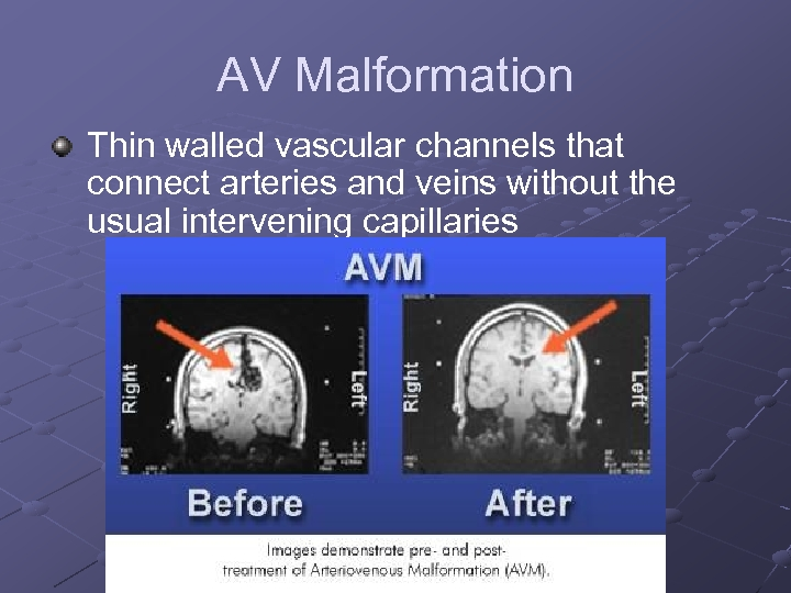 AV Malformation Thin walled vascular channels that connect arteries and veins without the usual