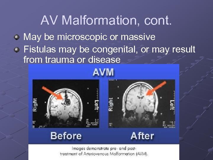 AV Malformation, cont. May be microscopic or massive Fistulas may be congenital, or may