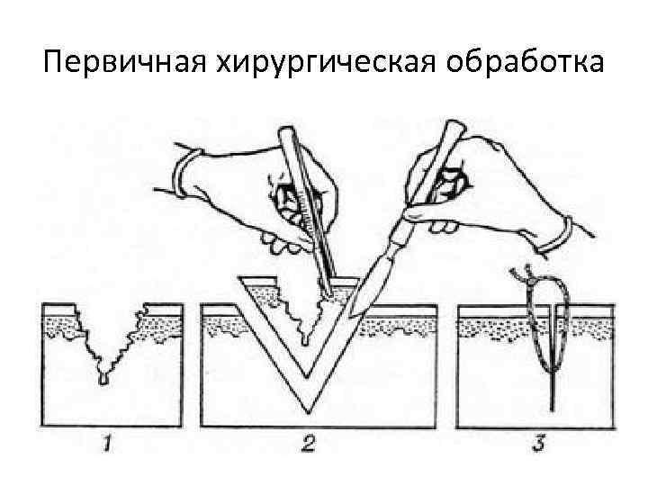 Схема первичной хирургической обработки ран
