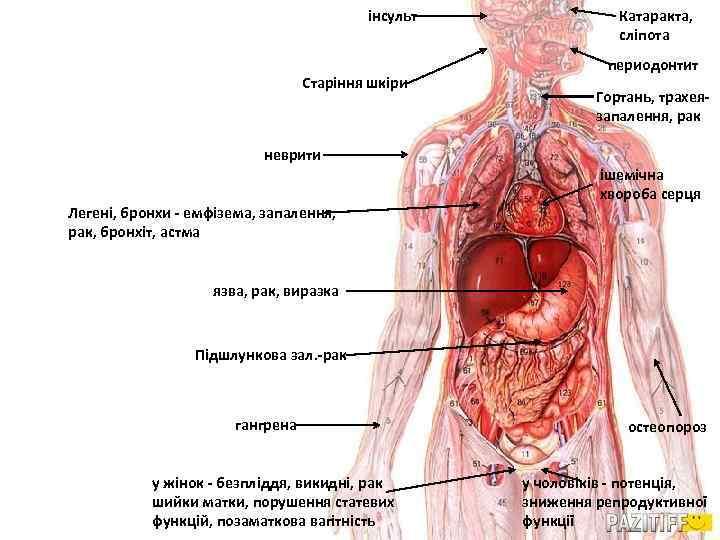 інсульт Старіння шкіри Катаракта, сліпота периодонтит Гортань, трахеязапалення, рак неврити Легені, бронхи - емфізема,