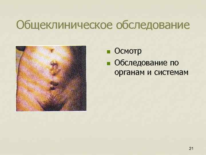 Общеклиническое обследование n n Осмотр Обследование по органам и системам 21