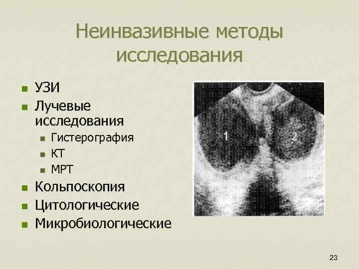 Неинвазивные методы исследования n n УЗИ Лучевые исследования n n n Гистерография КТ МРТ