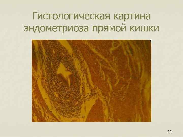 Гистологическая картина эндометриоза прямой кишки 25