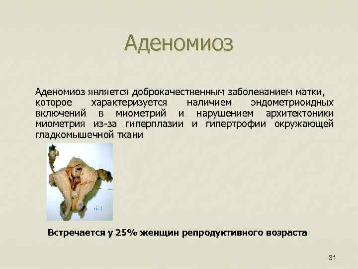 Аденомиоз является доброкачественным заболеванием матки, которое характеризуется наличием эндометриоидных включений в миометрий и нарушением