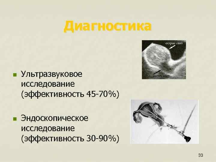 Диагностика n n Ультразвуковое исследование (эффективность 45 -70%) Эндоскопическое исследование (эффективность 30 -90%) 33