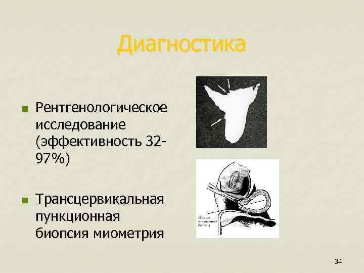 Диагностика n n Рентгенологическое исследование (эффективность 3297%) Трансцервикальная пункционная биопсия миометрия 34
