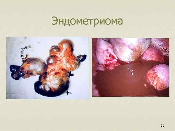 Эндометриома 36