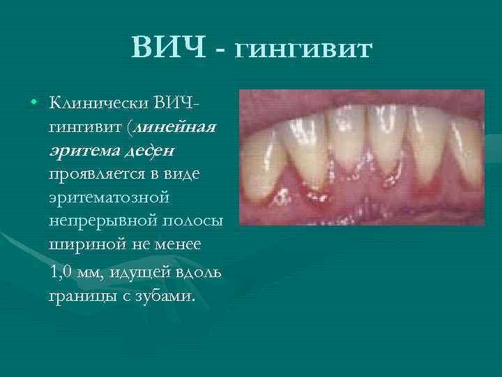ВИЧ - гингивит • Клинически ВИЧгингивит (линейная эритема десен ) проявляется в виде эритематозной