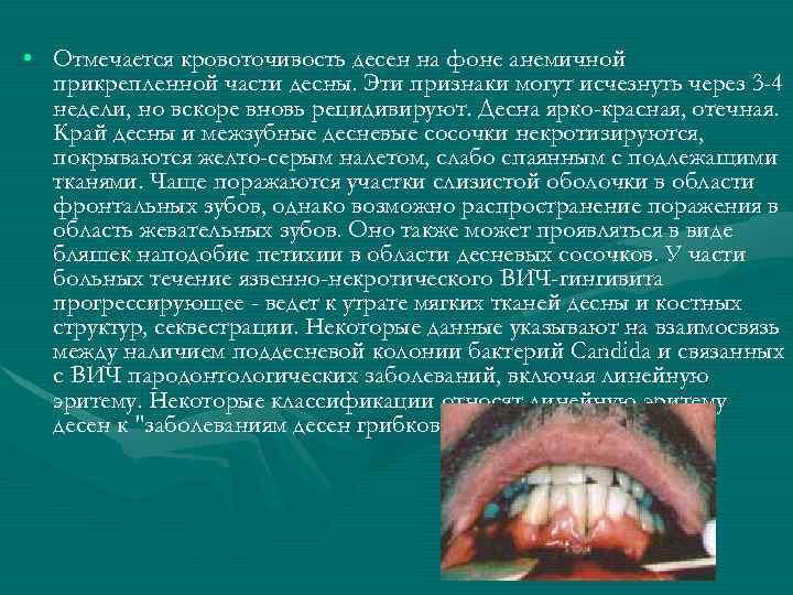 • Отмечается кровоточивость десен на фоне анемичной прикрепленной части десны. Эти признаки могут