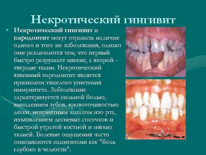 Некротический гингивит • Некротический гингивит и пародонтит могут отражать наличие одного и того же
