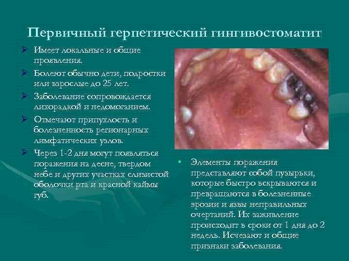 Первичный герпетический гингивостоматит Ø Имеет локальные и общие проявления. Ø Болеют обычно дети, подростки