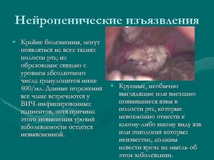 Нейропенические изъязвления • Крайне болезненны, могут появляться на всех тканях полости рта; их образование