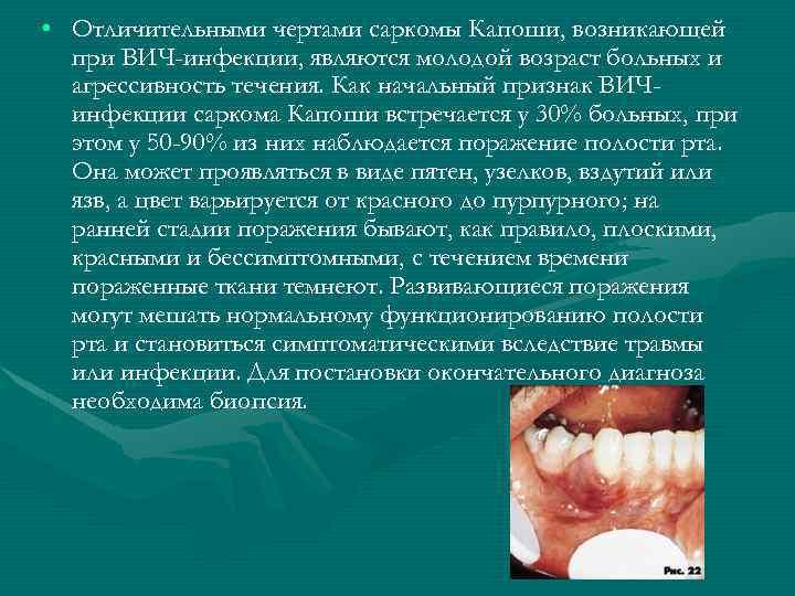 • Отличительными чертами саркомы Капоши, возникающей при ВИЧ-инфекции, являются молодой возраст больных и