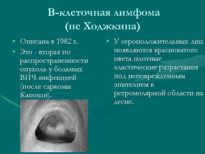 В-клеточная лимфома (не Ходжкина) • Описана в 1982 г. • Это - вторая по