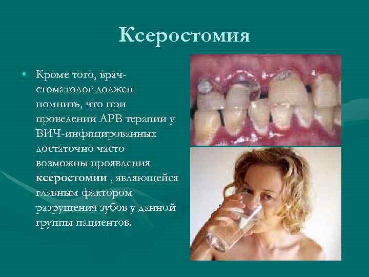 Ксеростомия • Кроме того, врачстоматолог должен помнить, что при проведении АРВ терапии у ВИЧ-инфицированных