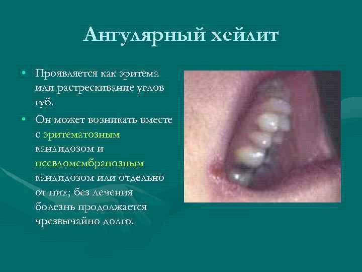 Ангулярный хейлит • Проявляется как эритема или растрескивание углов губ. • Он может возникать