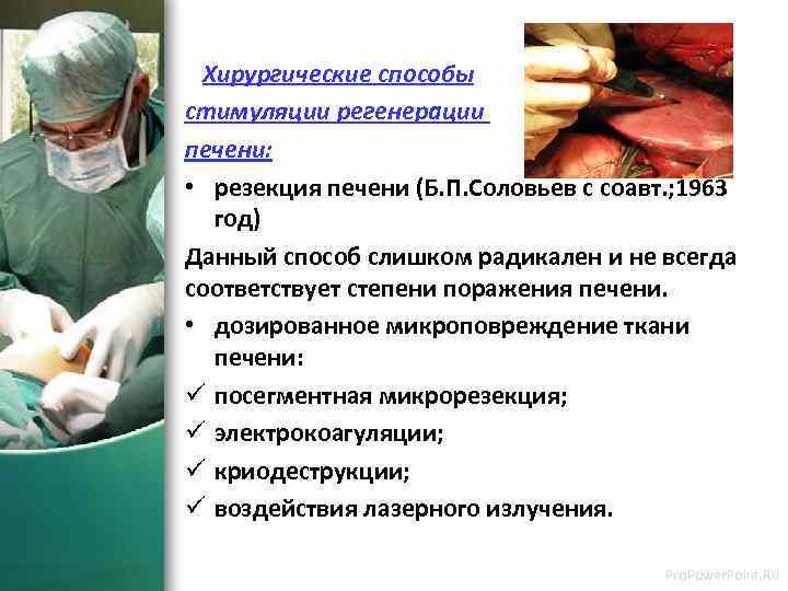 Хирургические способы стимуляции регенерации печени: • резекция печени (Б. П. Соловьев с соавт. ;
