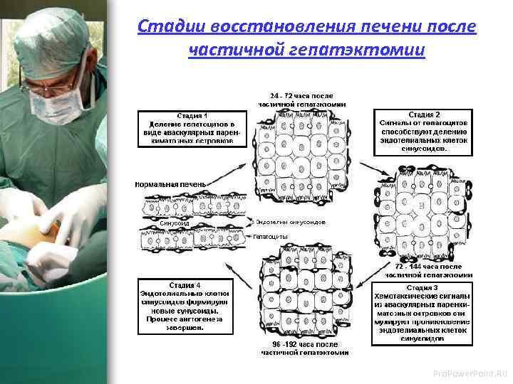 Стадии восстановления печени после частичной гепатэктомии Pro. Power. Point. Ru
