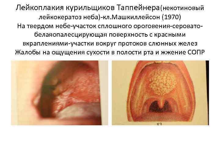 Лейкоплакия курильщиков Таппейнера(некотиновый лейкокератоз неба)-кл. Машкиллейсон (1970) На твердом небе-участок сплошного ороговения-сероватобелаяопалесцирующая поверхность с