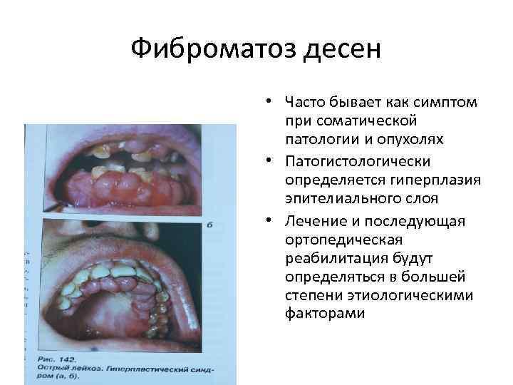 Фиброматоз десен • Часто бывает как симптом при соматической патологии и опухолях • Патогистологически