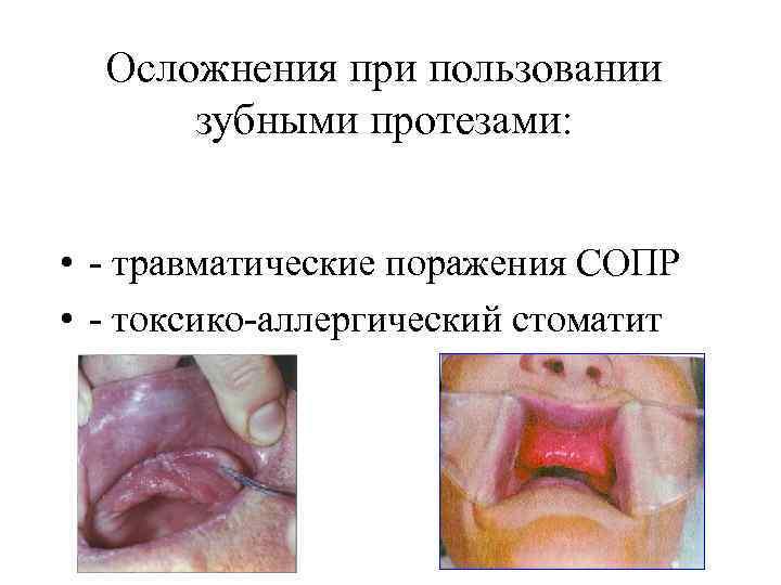 Осложнения при пользовании зубными протезами: • - травматические поражения СОПР • - токсико-аллергический стоматит