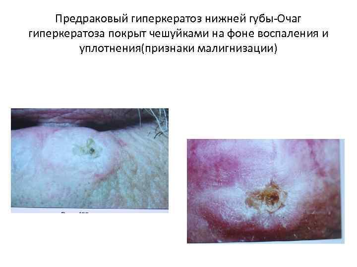 Предраковый гиперкератоз нижней губы-Очаг гиперкератоза покрыт чешуйками на фоне воспаления и уплотнения(признаки малигнизации)