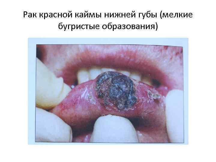 Рак красной каймы нижней губы (мелкие бугристые образования)