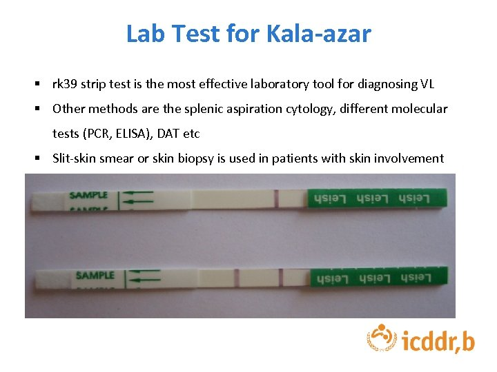 Lab Test for Kala-azar § rk 39 strip test is the most effective laboratory