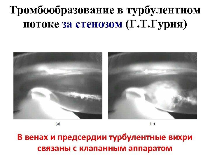 Тромбообразование в турбулентном потоке за стенозом (Г. Т. Гурия) В венах и предсердии турбулентные