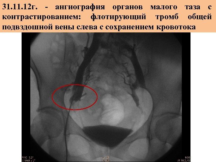 31. 12 г. - ангиография органов малого таза с контрастированием: флотирующий тромб общей подвздошной