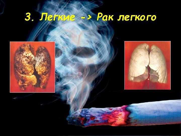 3. Легкие -> Рак легкого