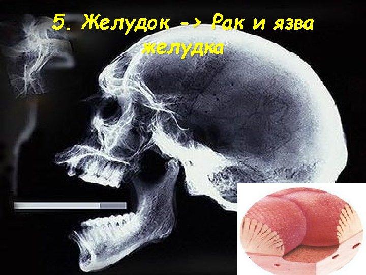 5. Желудок -> Рак и язва желудка
