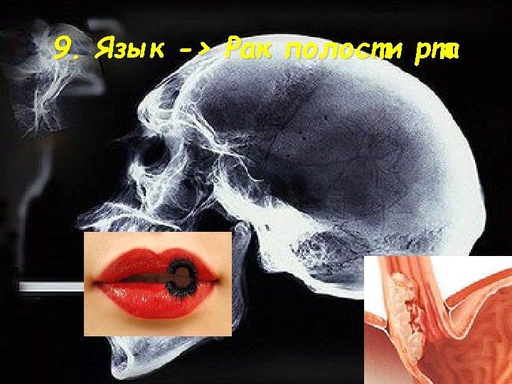 9. Язык -> Рак полости рта