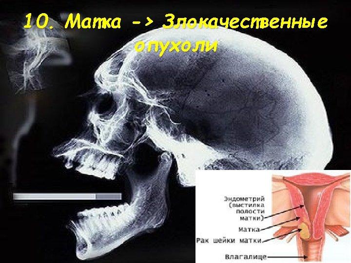 10. Матка -> Злокачественные опухоли