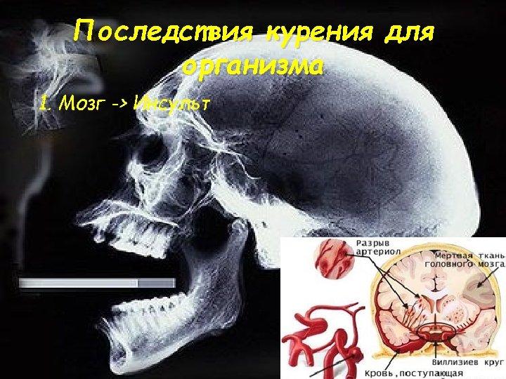 Последствия курения для организма 1. Мозг -> Инсульт